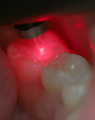 diagnodent-zahn