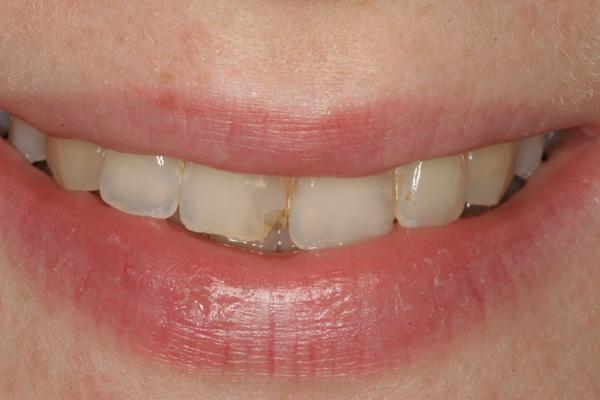 Zahn-abgebrochen