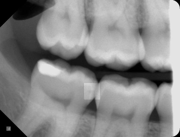 Zahnzwischenraumkaries-Roentgen
