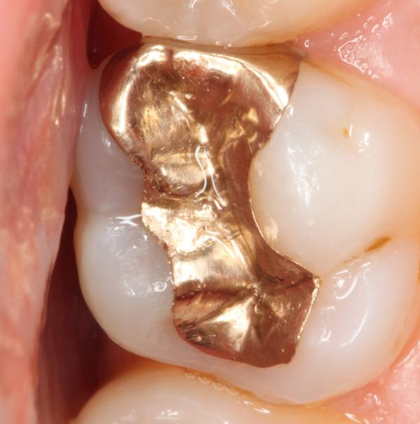 Goldrestauration-mit-Randspalt