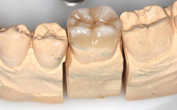 Keramikteilkrone-Saegemodell
