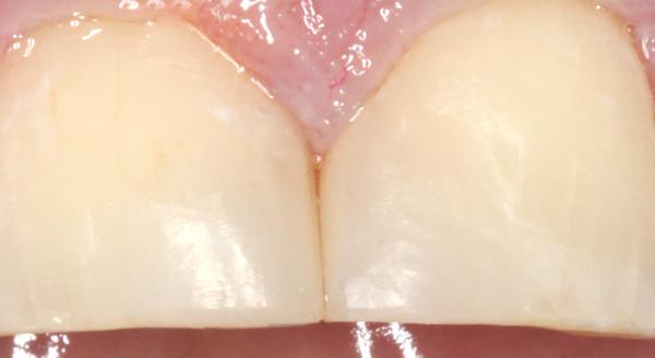 Komposit-Frontzaehne-Detail