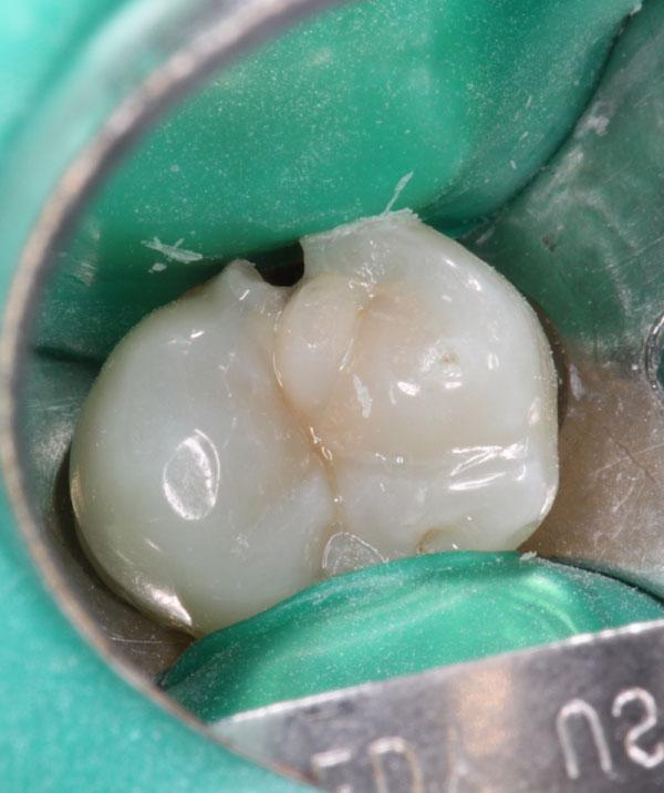 Zahnzwischenraumkaries-1
