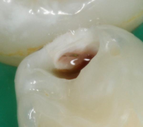 Zahnzwischenraumkaries-Milchzahn-aufgebohrt-02