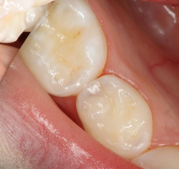 Zahnzwischenraumkaries-Milchzahn-aufgebohrt-03