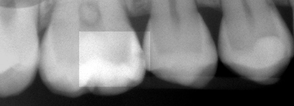 Zahnzwischenraumkaries-roe-web