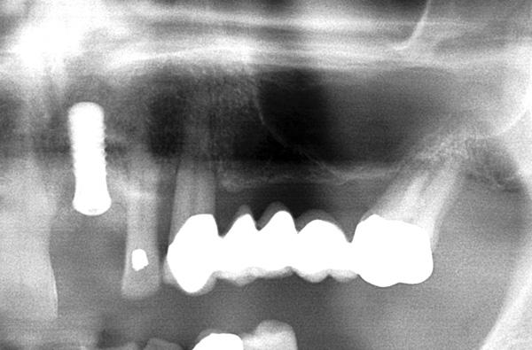 Implantat21