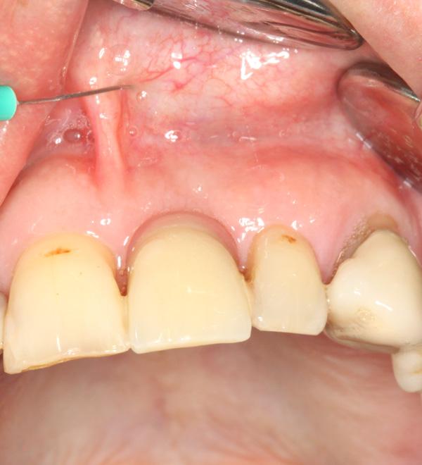 Klebebruecke-als-Provisorium-bei-Implantatversorgung