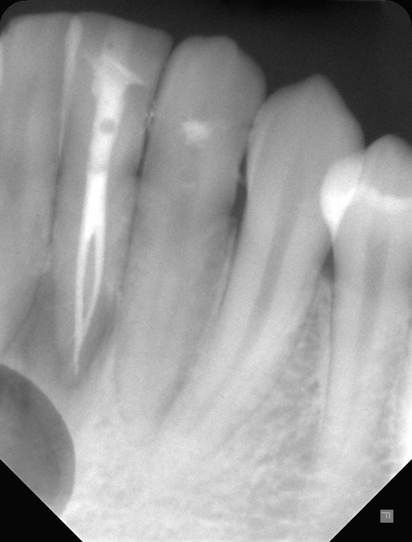 Wurzelkanalbehandlung-Unterkiefer-Frontzahn-zwei-Wurzelkanaele-zwei-Wurzelkanalfuellungen-w