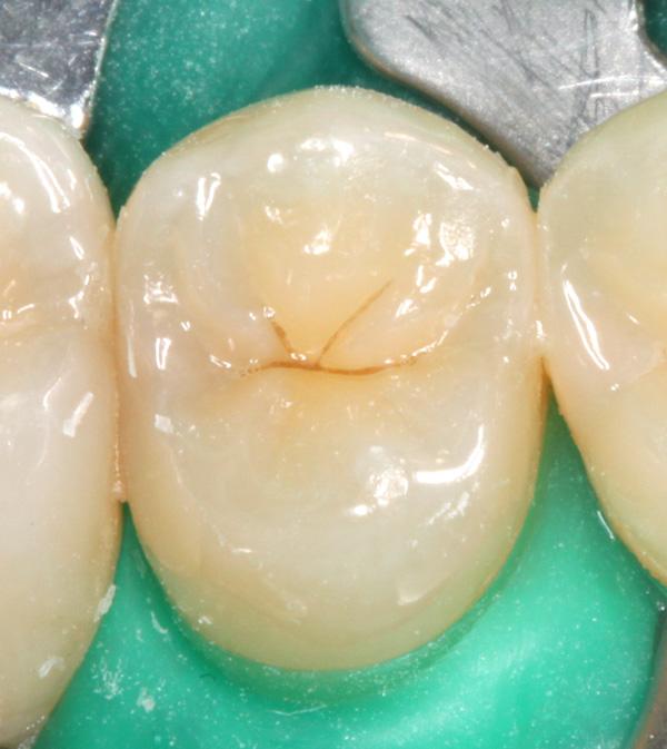 Zahnzwischenraumkaries-25-Ausgangsbild