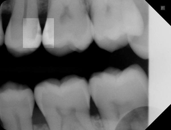Zahnzwischenraumkaries-25-Ausgangsroentgen-