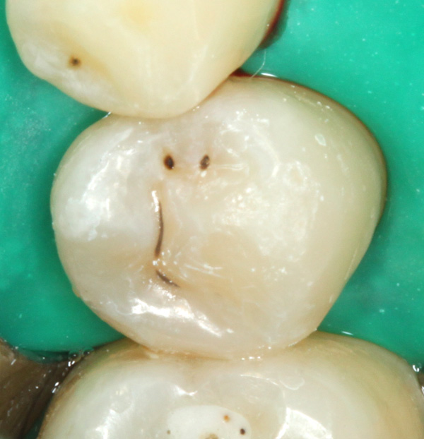 Zahnzwischenraumkaries-dentinadhaesive-Kompositrestauration