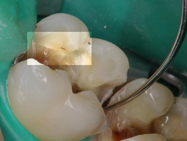 Amalgamentfernung-Risse-im-Zahn-2