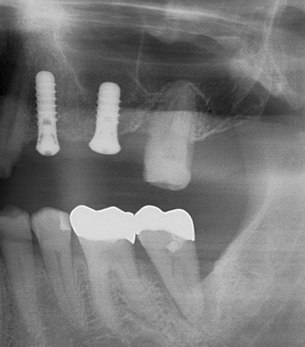 Implantate-24-26-w