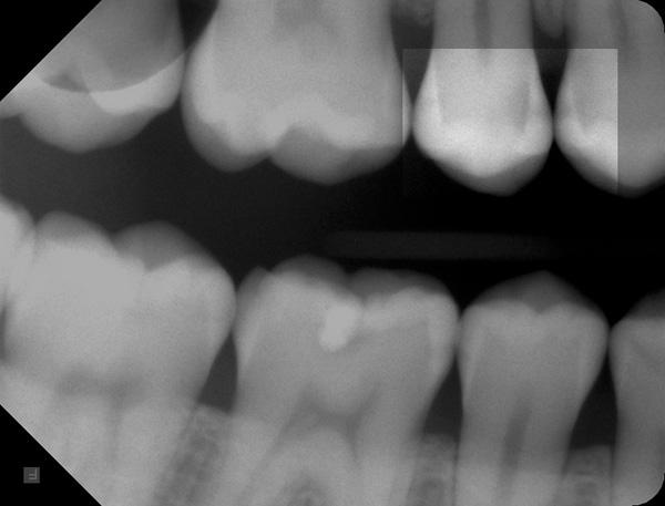 Zahnzwischenraumkaries-14-15-ROE-