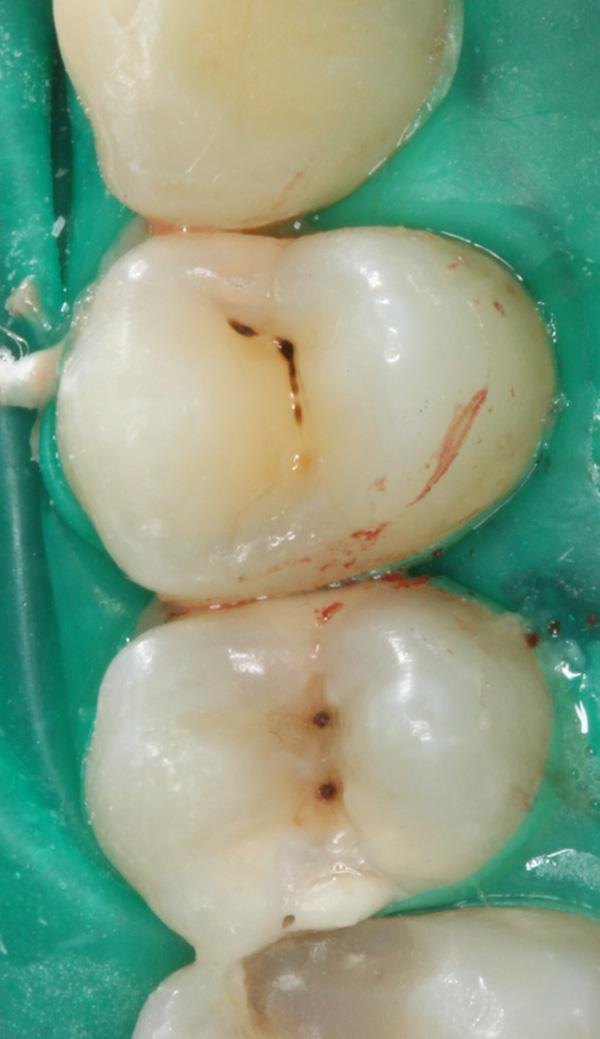 Zahnzwischenraumkaries-Ausgangssituation