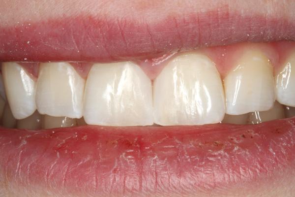 Zahnzwischenraumkaries-Oberkierfer-Frontzaehne-Komposit-