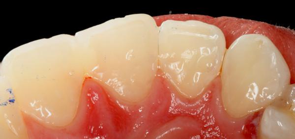 Zahnzwischenraumkaries-Oberkierfer-Frontzaehne-Komposit