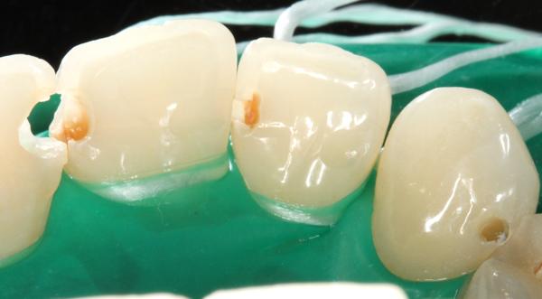 Zahnzwischenraumkaries-Oberkierfer-Frontzaehne
