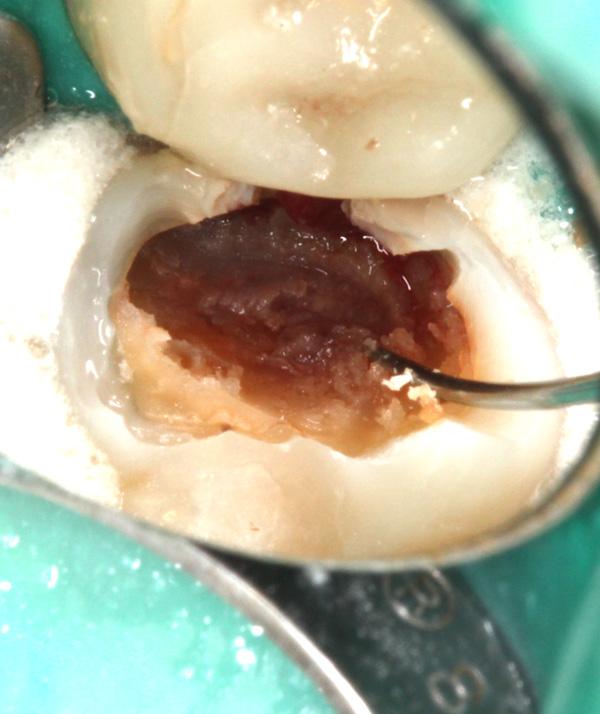Zahnzwischenraumkaries-aufgebohrt-4