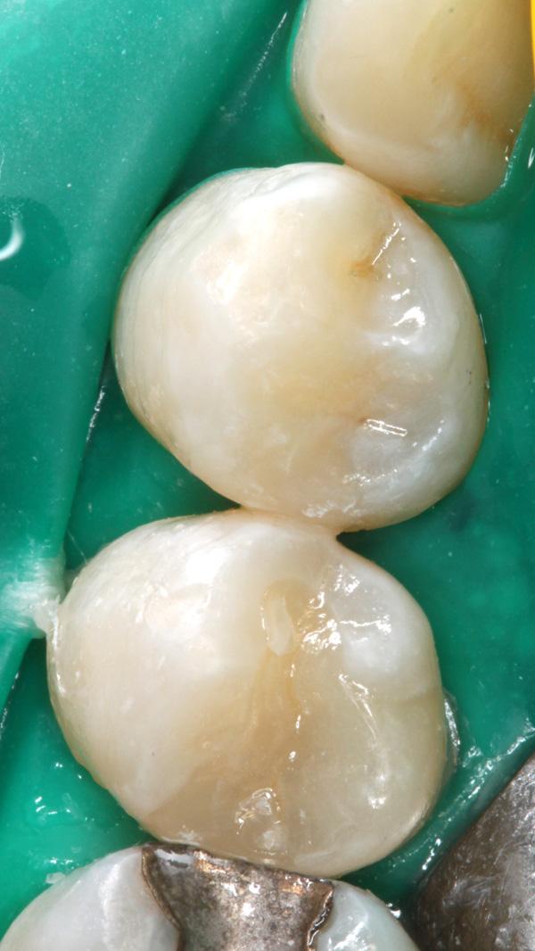 Zahnzwischenraumkaries-dentinadhaesibe-Kompositrestauration