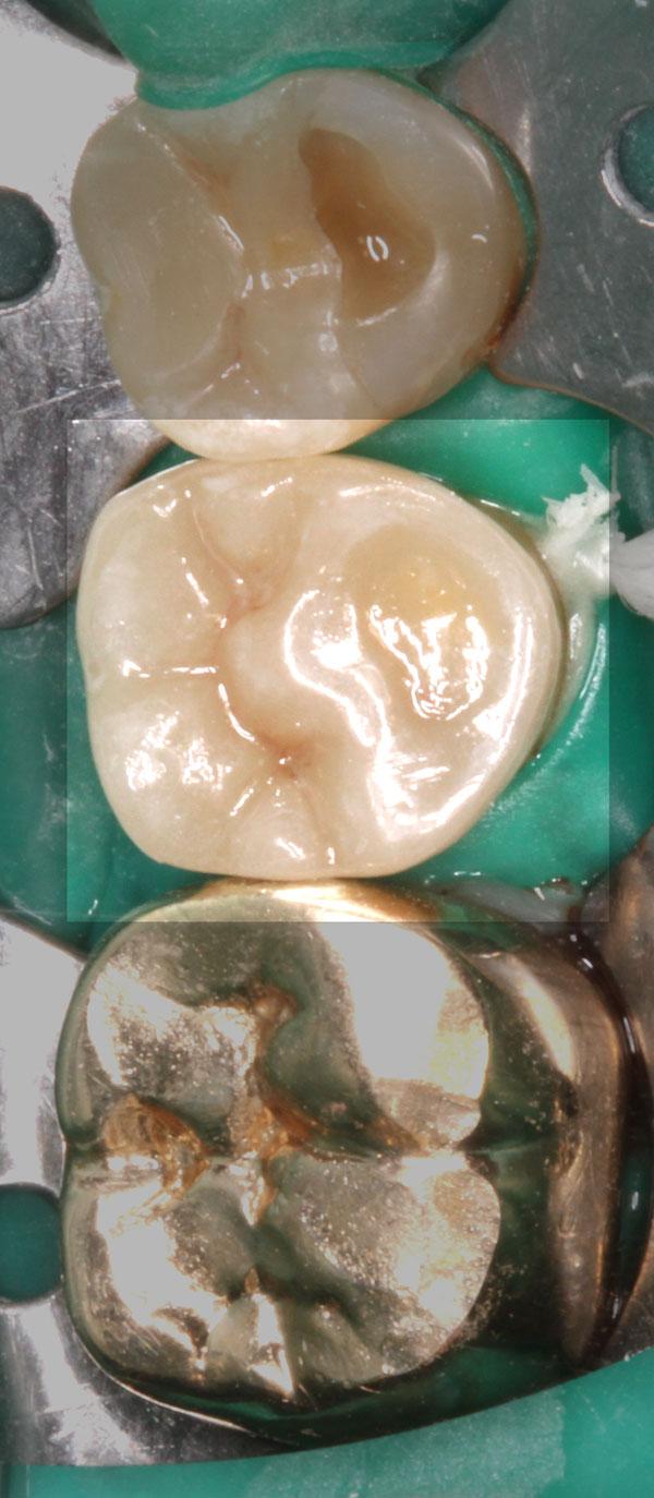 keramikteilkrone-35-