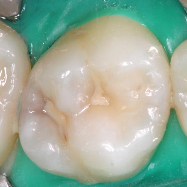 Zahnzwischenraumkaries-Ausgangsbild