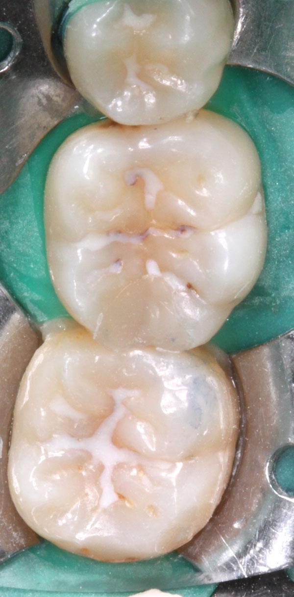 Zahnzwischenraumkaries-Fissurenkaries-Ausgangsbild
