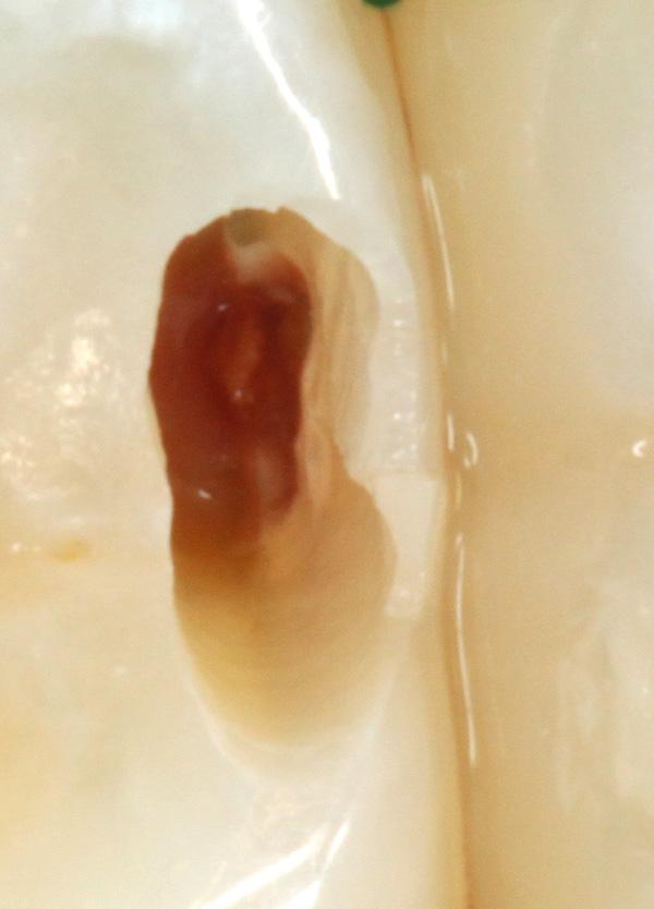 Zahnzwischenraumkaries-aufgebohrt-Detail