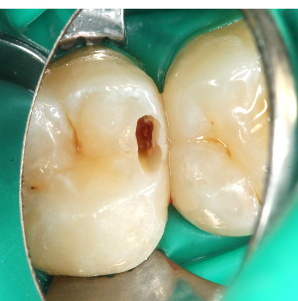 Zahnzwischenraumkaries-aufgebohrt