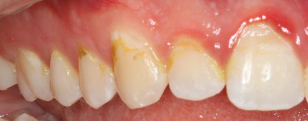 Zahnhalskaries-und-Zahnfleischentzuendung