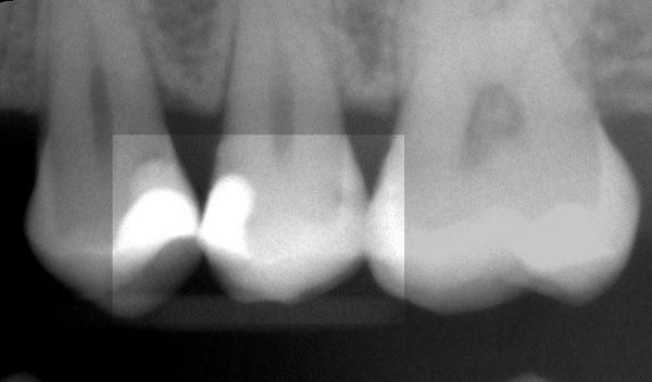 Karies-Zahnzwischenraum-roe-