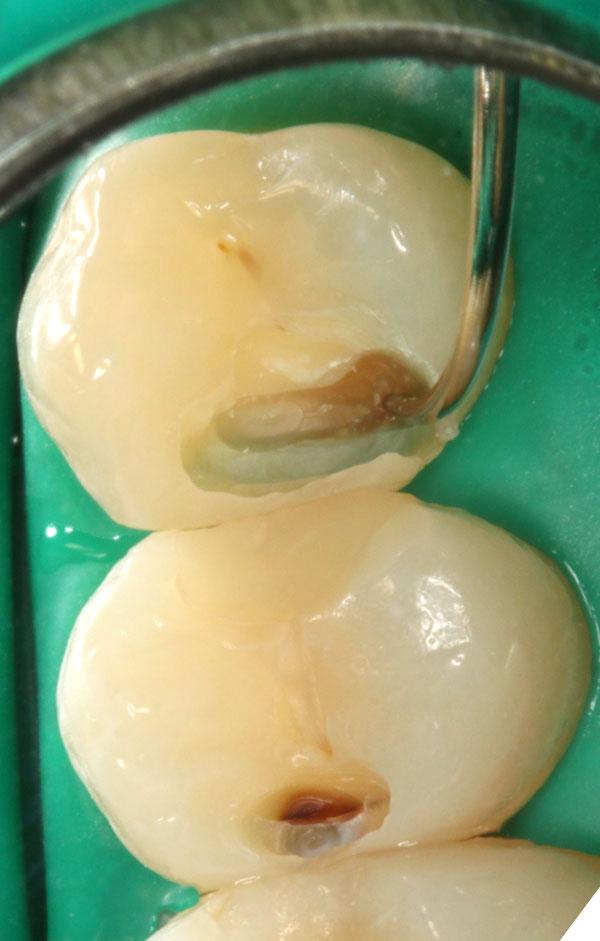 Karies-Zahnzwischenraum