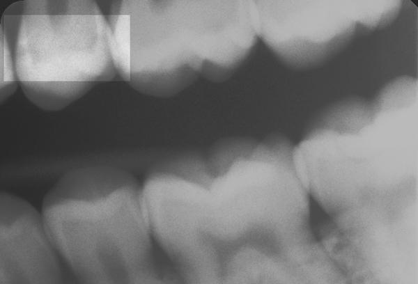 Zahnzwischenraumkaries-25-w