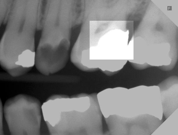 Karies-unter-Amalgamfuellung-Kontrollroentgen-vor-5-Jahren-w