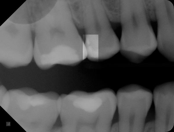 Zahnzwischenraumkaries-Roe-w