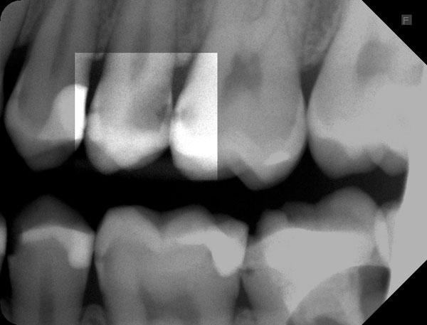 Zahnzwischenraumkaries-25-26-w