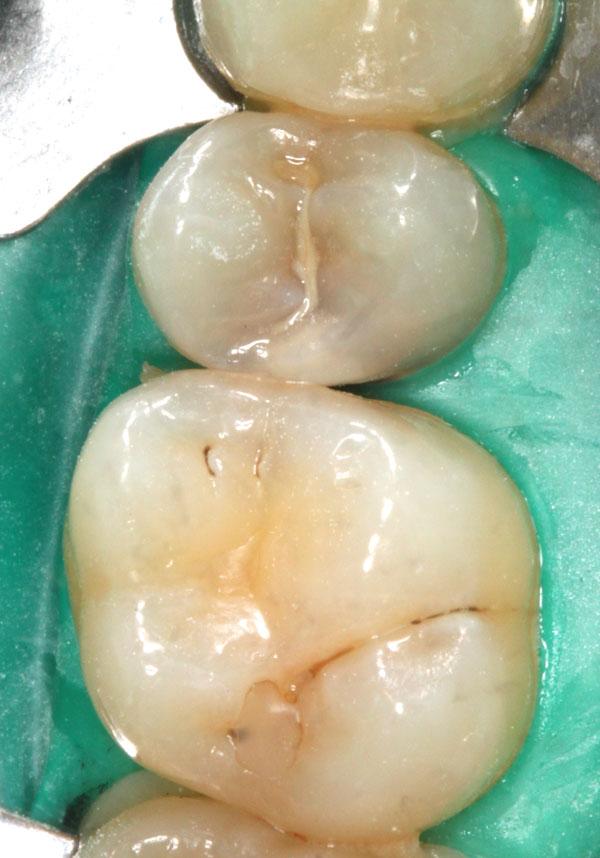Zahnzwischenraumkaries-an-Zahn-25-und-26
