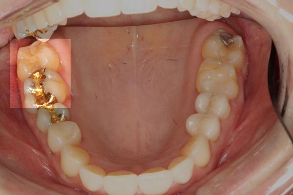Inlayrandkaries-und-Zahnzwischenraumkaries
