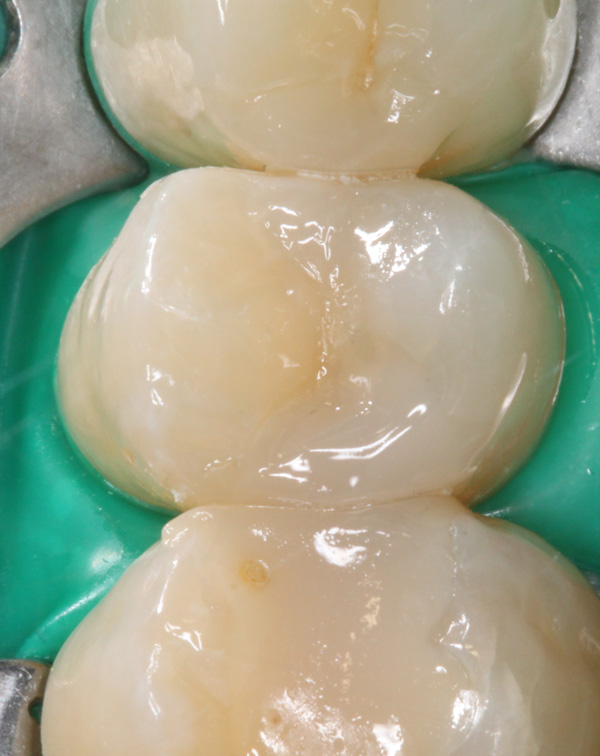 Zahnzwischenraumkaries-25-Komposit