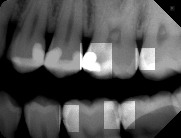 Zahnzwischenraumkaries-26-27-37-36w