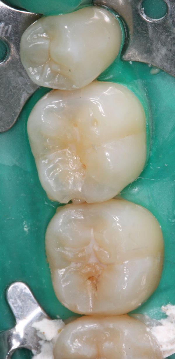 Zahnzwischenraumkaries-37-36-Ausgangsbild