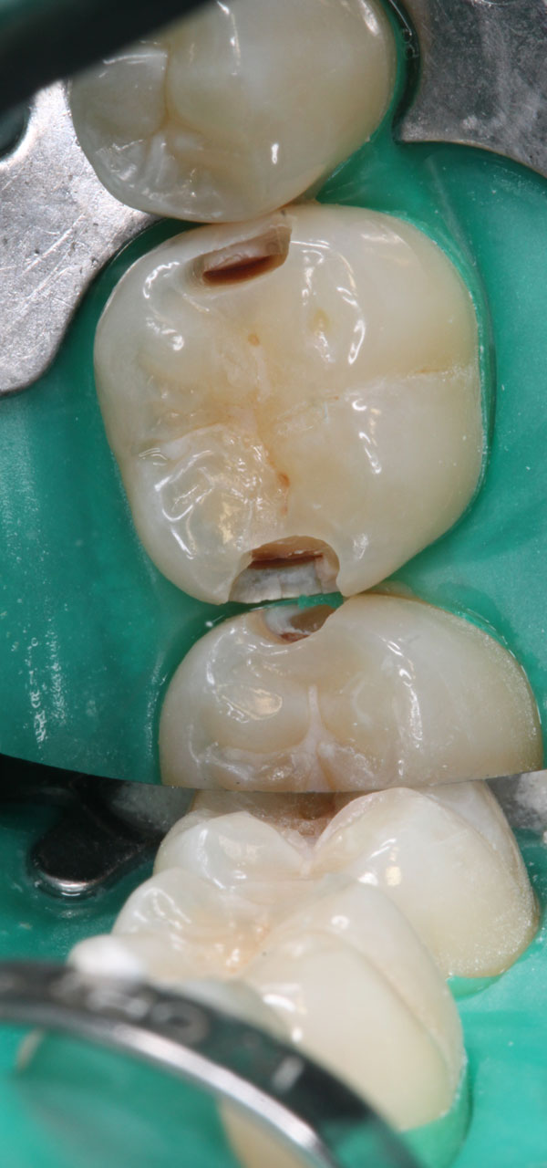 Zahnzwischenraumkaries-37-36-aufgebohrt-m