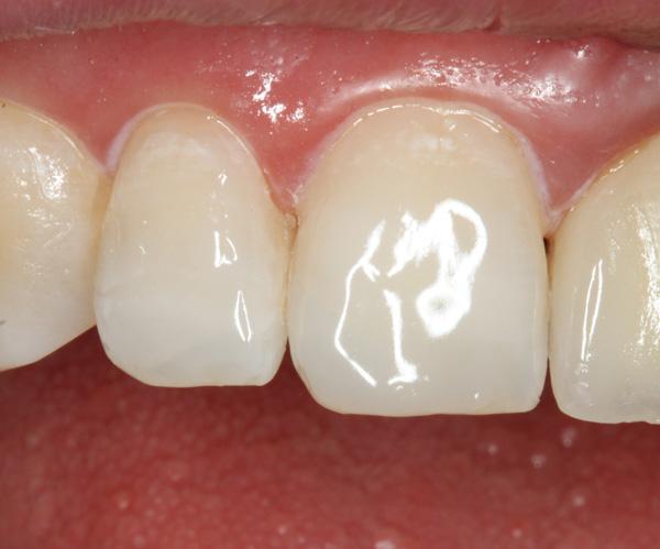 Post-Zahnfraktur