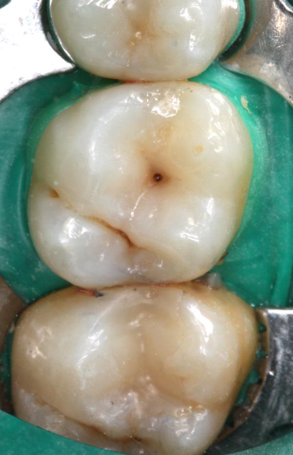 Zahnzwischenraumkaries-16-Ausgangsbild