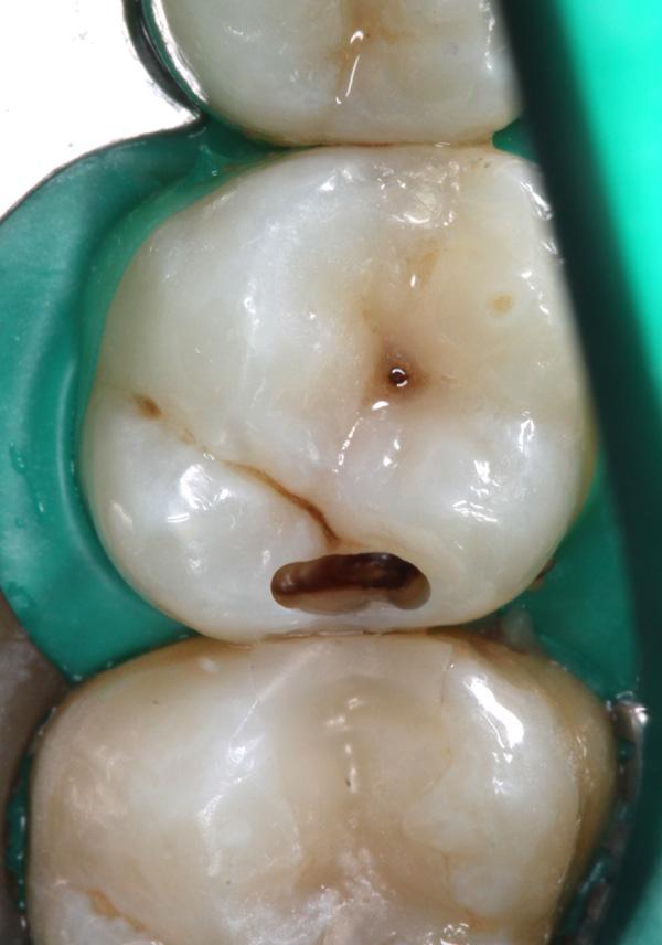 Zahnzwischenraumkaries-16-aufgebohrt