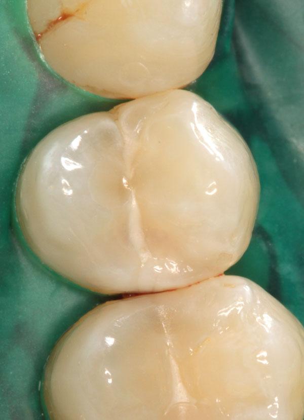 Zahnzwischenraumkaries-a