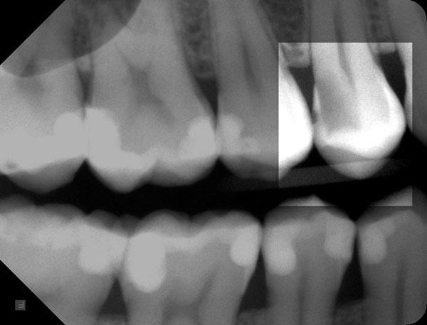 Zahnzwischenraumkaries-r-