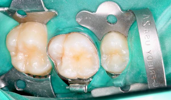 Kofferdam-bei-bebaendertem-Zahn-16