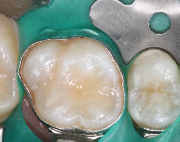 Komposit-+-Fissurenversiegelung